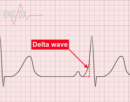 Delta wave