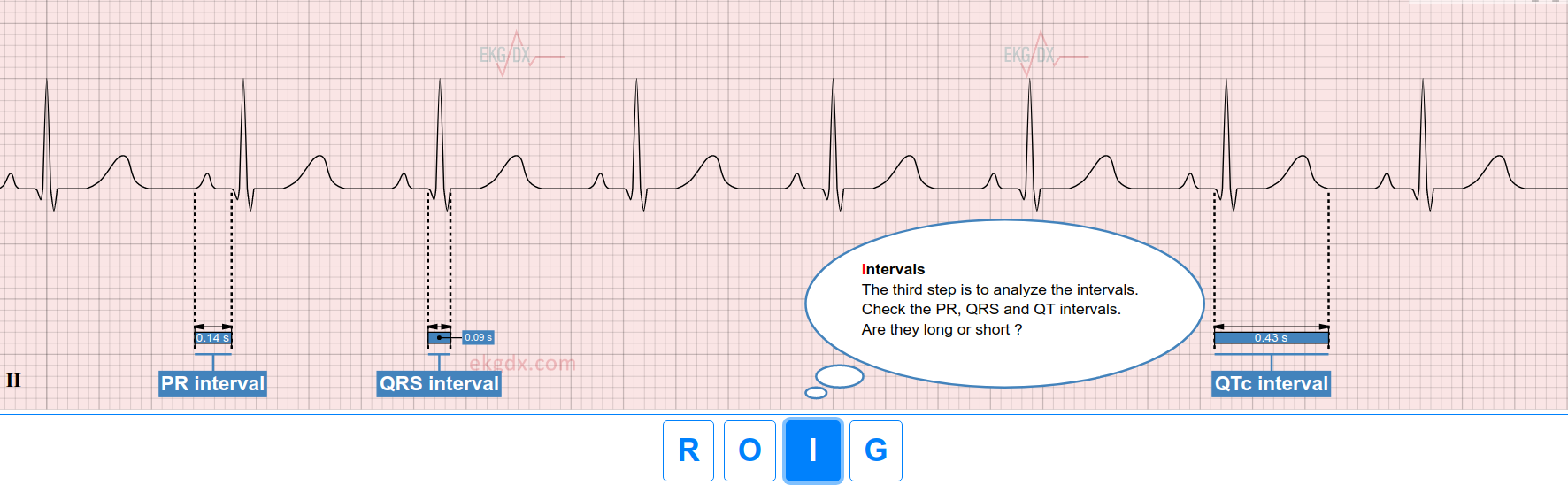 EKG intervals