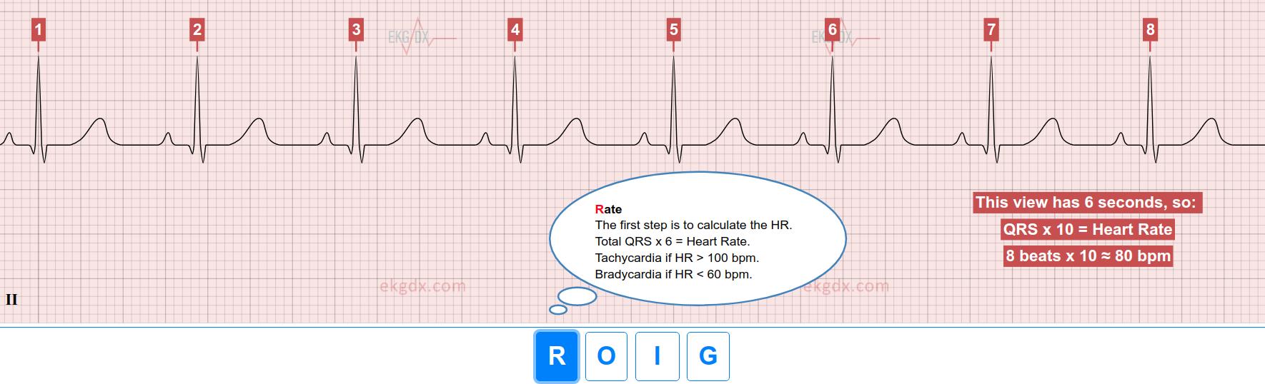EKG rate