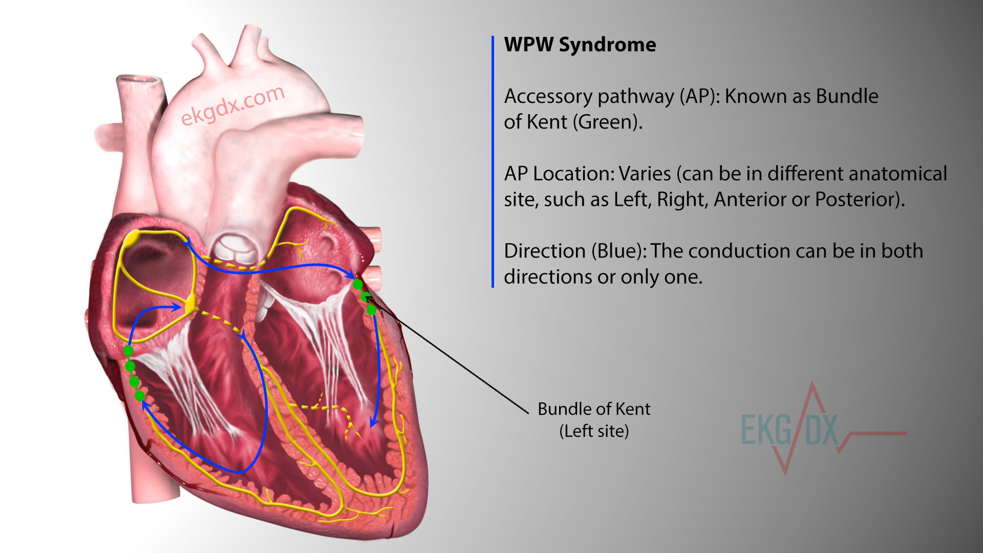 WPW syndrome